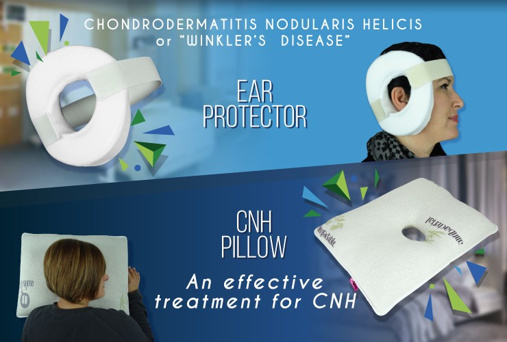 chondrodermatitis nodularis helicis offers